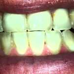Amalgam Fillings In Your Mouth Are Poisoning You (Video)