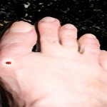 Cherry Consumption May Lower Gout Flare-ups