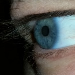 Contact Lenses Alter Eye Bacteria, Making It More Skin-Like