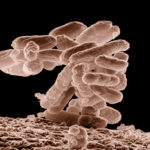 Infectious diarrhea spores survive high temperatures of hospital laundering